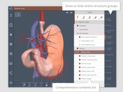 Abdomen: 3D RT - Sub 3.1 Screenshot