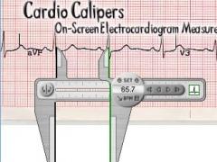 Cardio Calipers 3.3 Screenshot