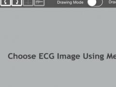 ECG Analyser 1.1 Screenshot
