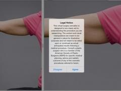 Eisemann Plastic Surgery for iPad 2.0 Screenshot