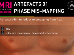 MRI Artefacts 01 1.0.0 Screenshot